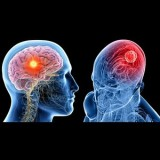 Κυκλοφορία του Αίματος στον Εγκέφαλο
