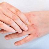 Σκασμένα Χέρια